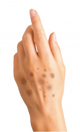 correcteur anti-taches brunes - GANTOIS